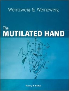 The Mutilated Hand