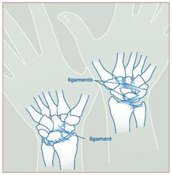 Wristsprains_image1