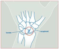 Wristsprains_image2