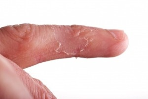 hand-infections
